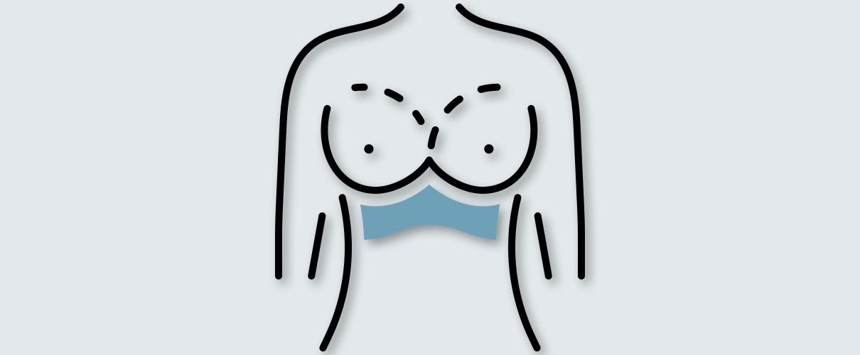brust op: brustvergrößerung tablet
